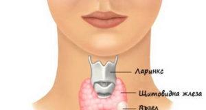 възли на щитовидната жлеза