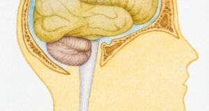 Какво трябва да знаят близките на застрашените от кръвоизлив в мозъка?