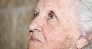 Старчески петна, пигментация на кожата, тъмни петна на кожата