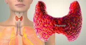 болната щитовидна жлеза