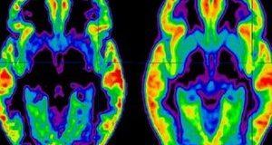 Лекарство против рак цери шизофрения