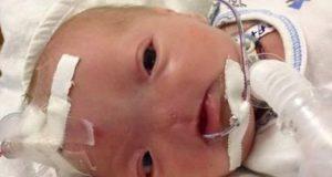 бебе без нос