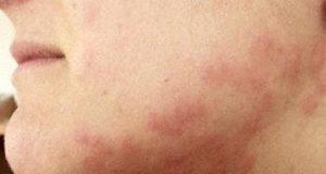 Бъдете особено внимателни с креватните дървеници, ако сте алергични към тях