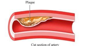 лечение на гуша с хомеопатия