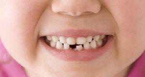 При никнене на млечни зъби някои деца стават раздразнителни
