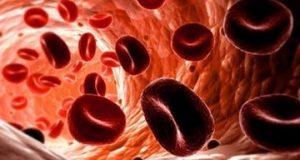 Анемията може да се развие при тежки кръвоизливи