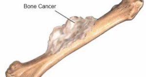kosten tumor