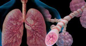 астма и алергии