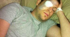 Очен компрес