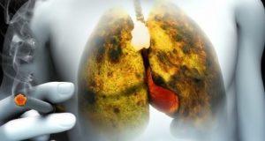 изчистване на белия дроб