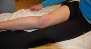 Счупено коляно