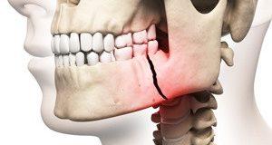 травма на челюстта