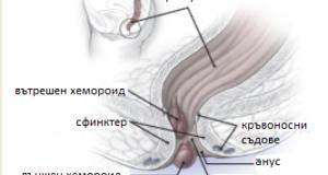 хемороид