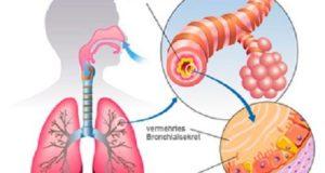 астмата и алергиите