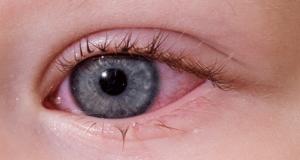 възпаления на очите