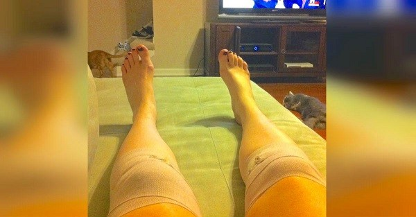 коляното