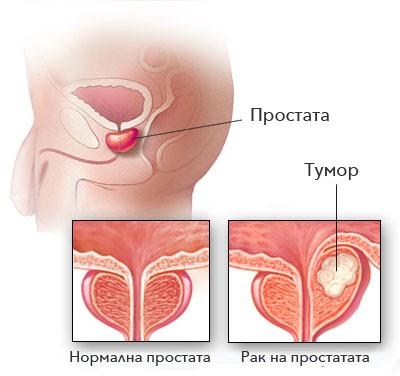 рака на простатата