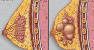 фиброкисти на гърдата