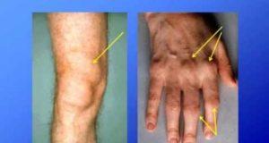 ревматоидният артрит