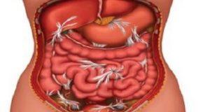 ендометриоза