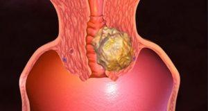 рак на матката