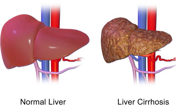 Цирозата на черен дроб