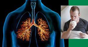 лечение на кашлица