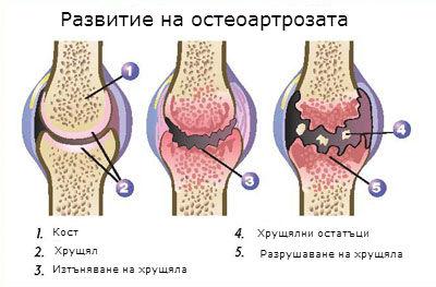 Дефинакс свещички при артрит