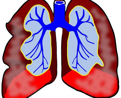 Бронхиальная астма Народное лечение бронхиальной астмы