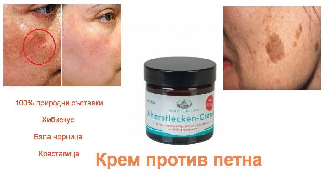 крем против старчески петна
