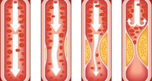стесняването на кръвоносните съдове