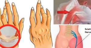 премахва артрит