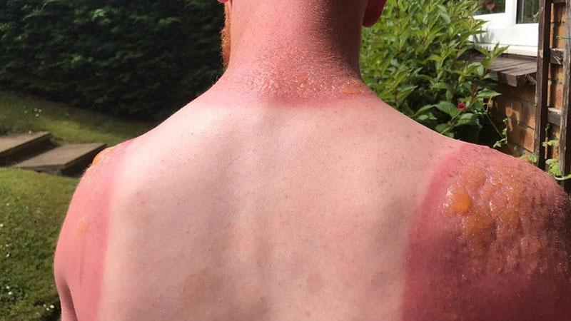 слънчевото изгаряне