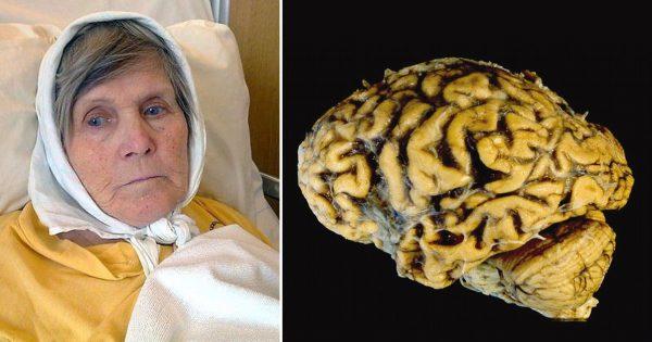 Болестта на Алцхаймер