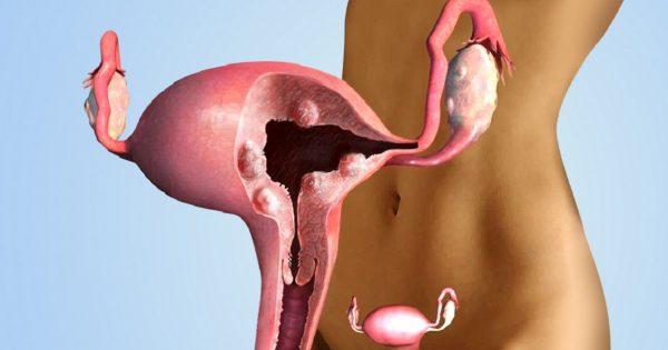 ерозия на матката
