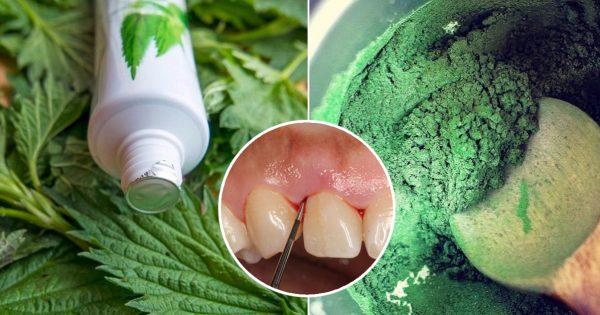 кървенето на венците