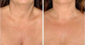 кожата на шията