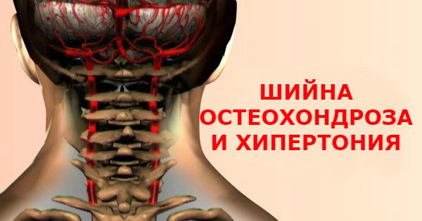 цервикална остеохондроза