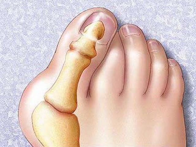 кокалчетата на крака
