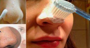 как да премахнем черните точки с паста за зъби