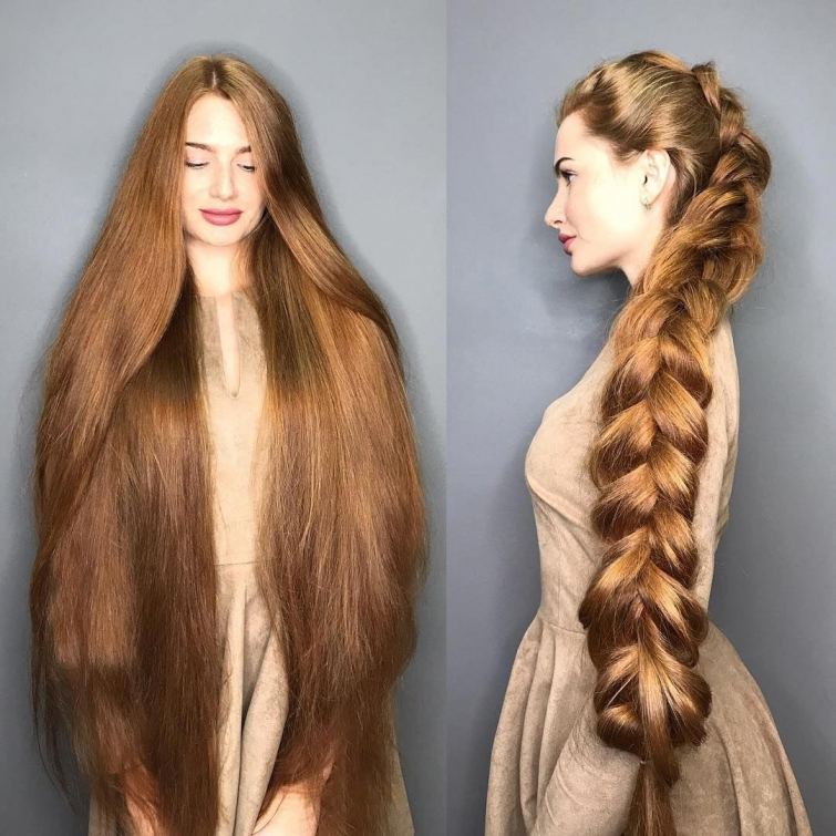 Анастасия Сидорова коса алопеция
