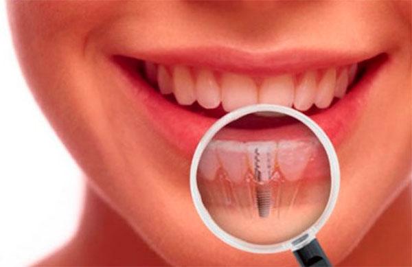 зъбните импланти