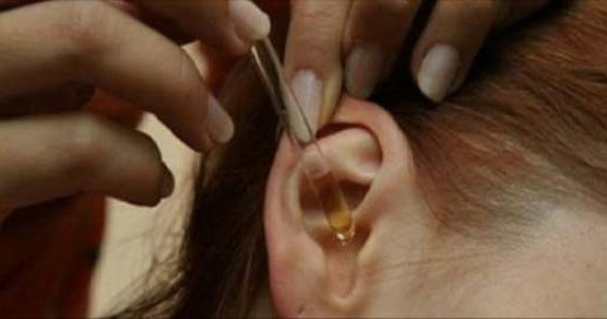 лек за връщане на слуха