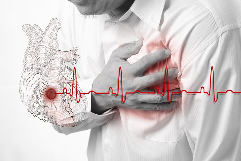 сърдечна кашлица