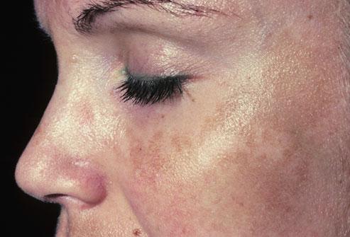 следродилните петна