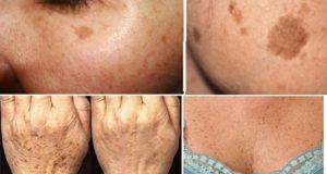 Старчески петна - как да ги премахнем ?