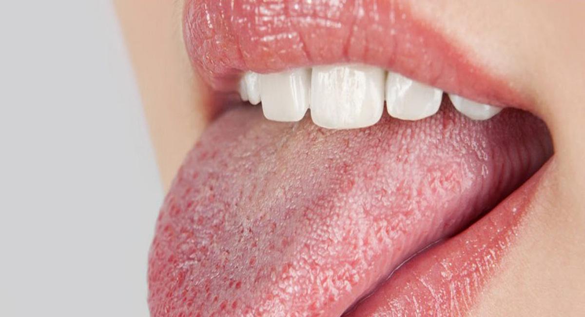 сухата уста