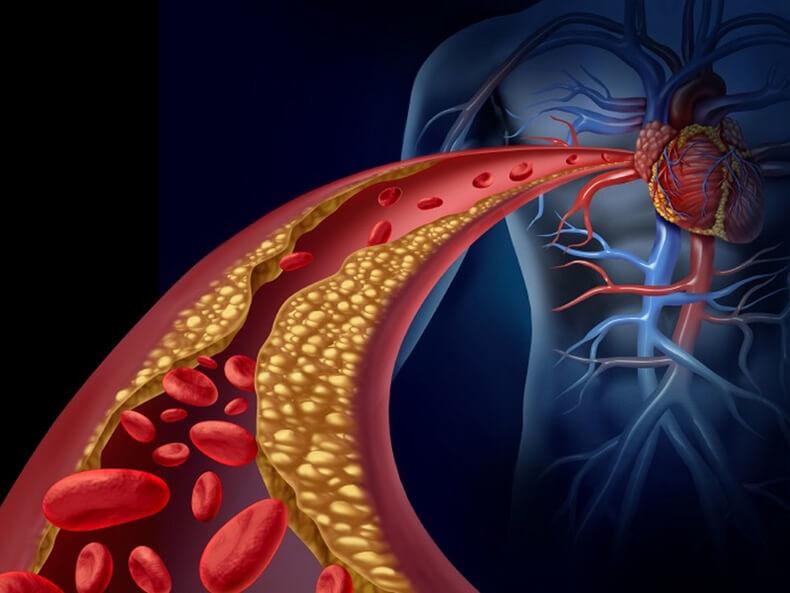артериите