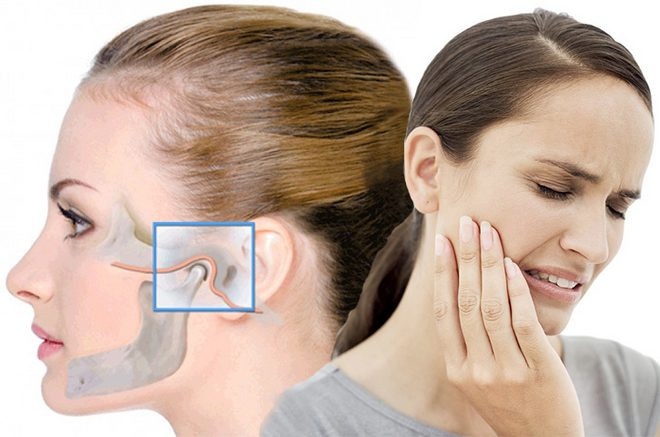 челюстта