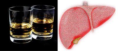 алкохол черен дроб